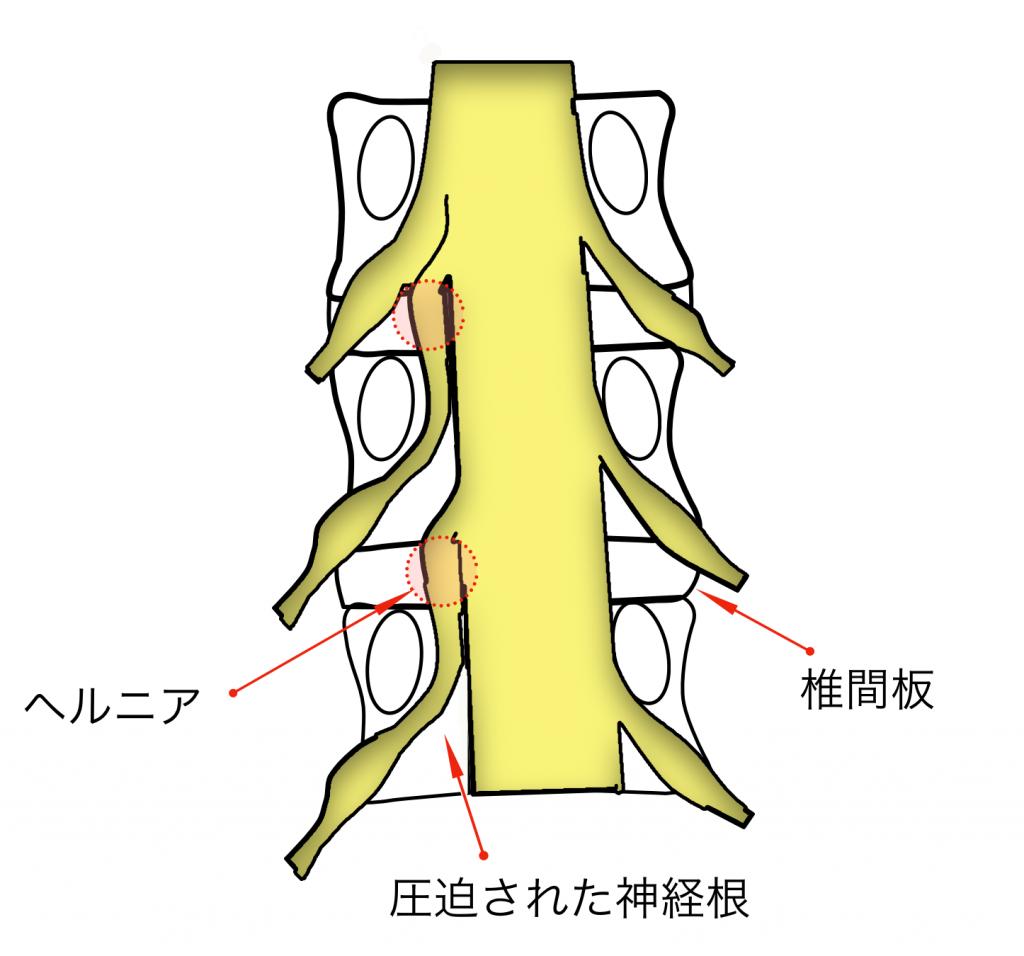 腰痛 腰椎椎間板ヘルニア