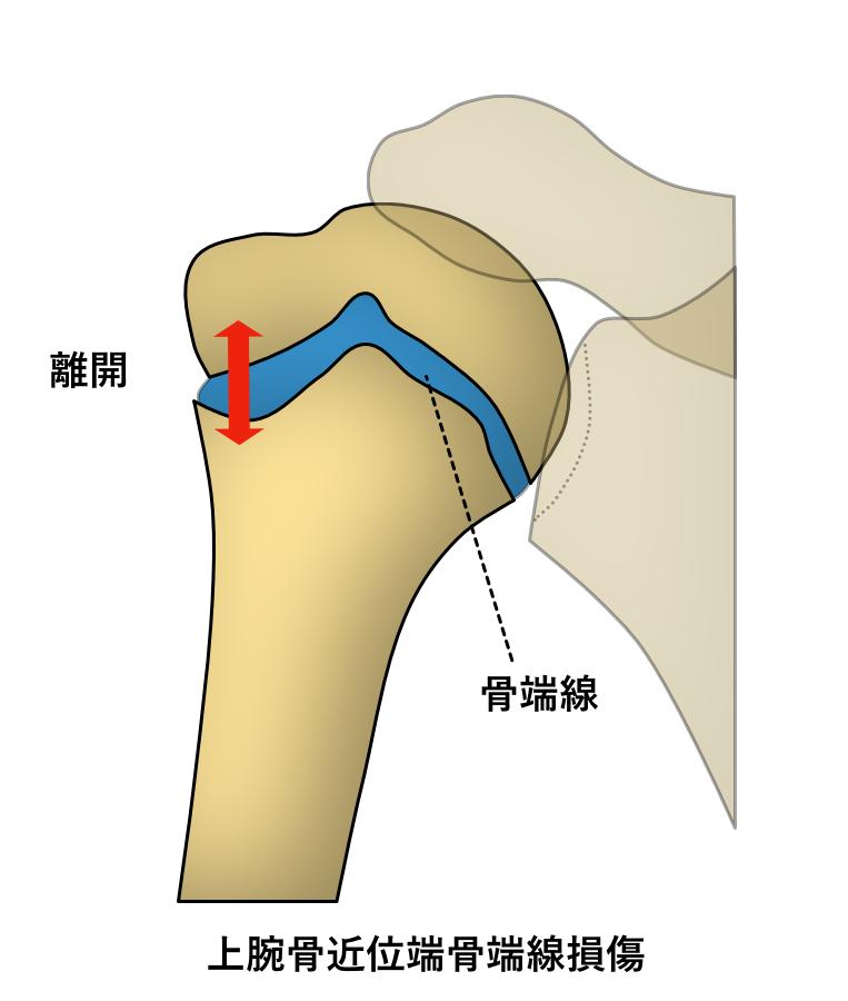 上腕骨近位端骨端線損傷 スポーツ中の痛み