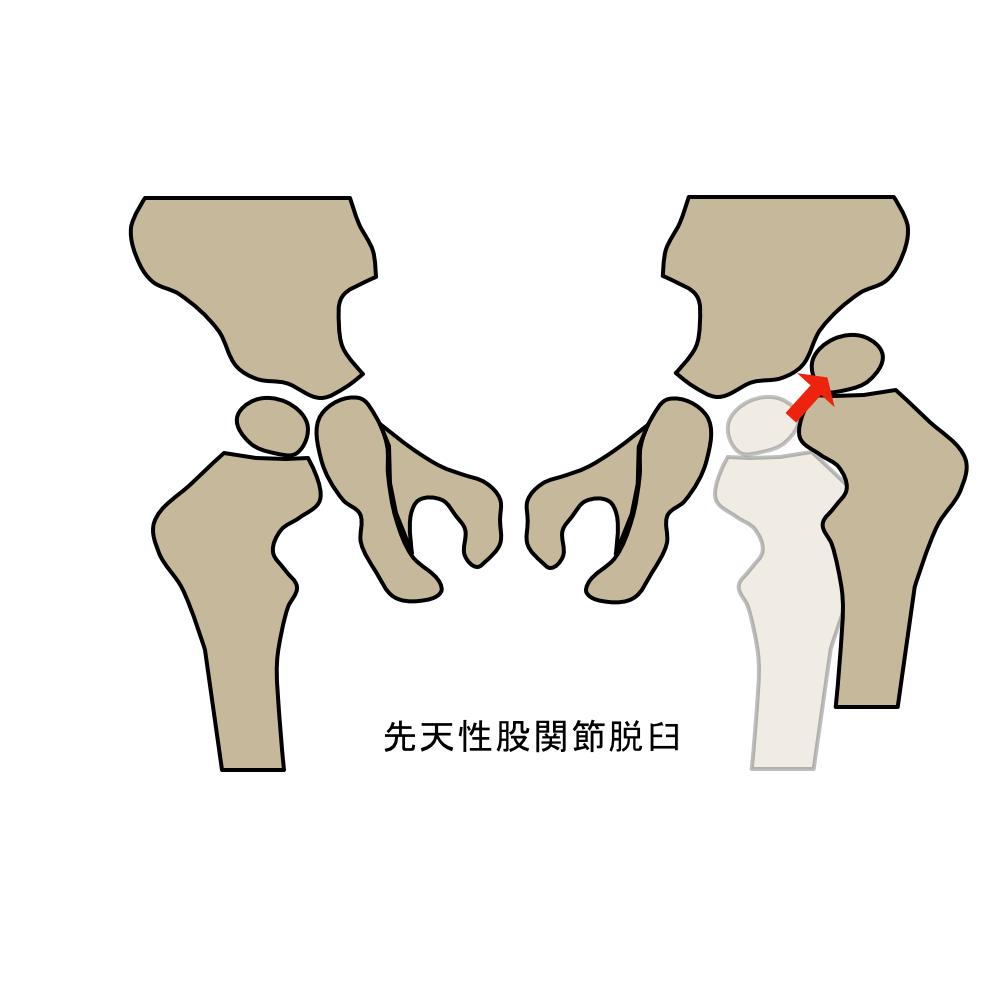 先天性股関節脱臼
