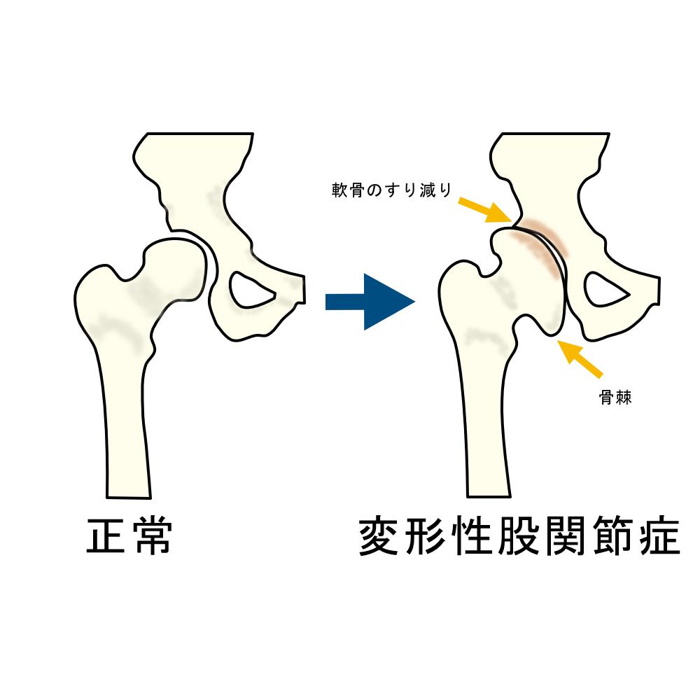 股関節の痛み 変形性股関節症