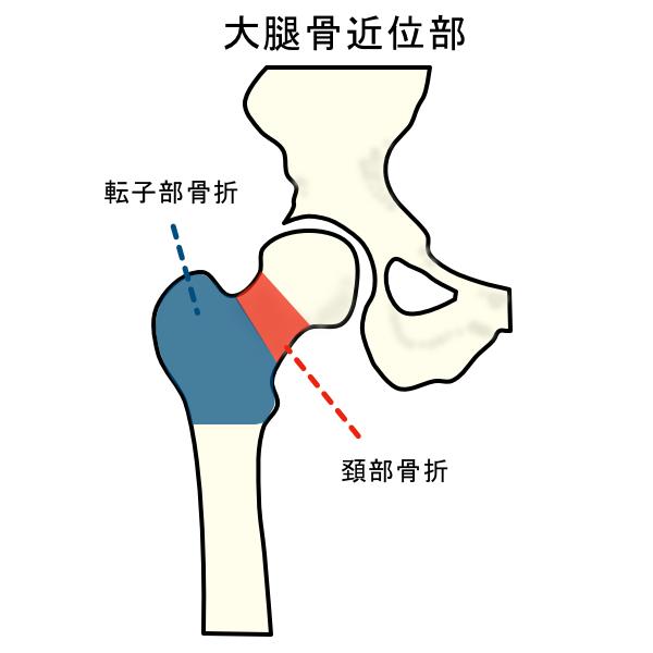 大腿骨 骨折