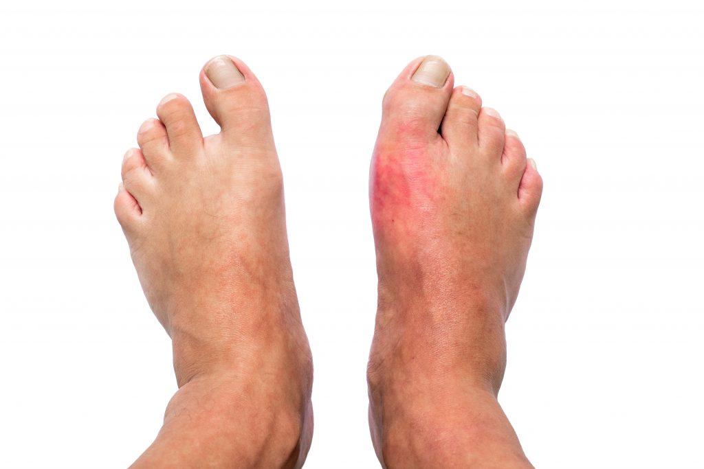 痛風 足の痛み