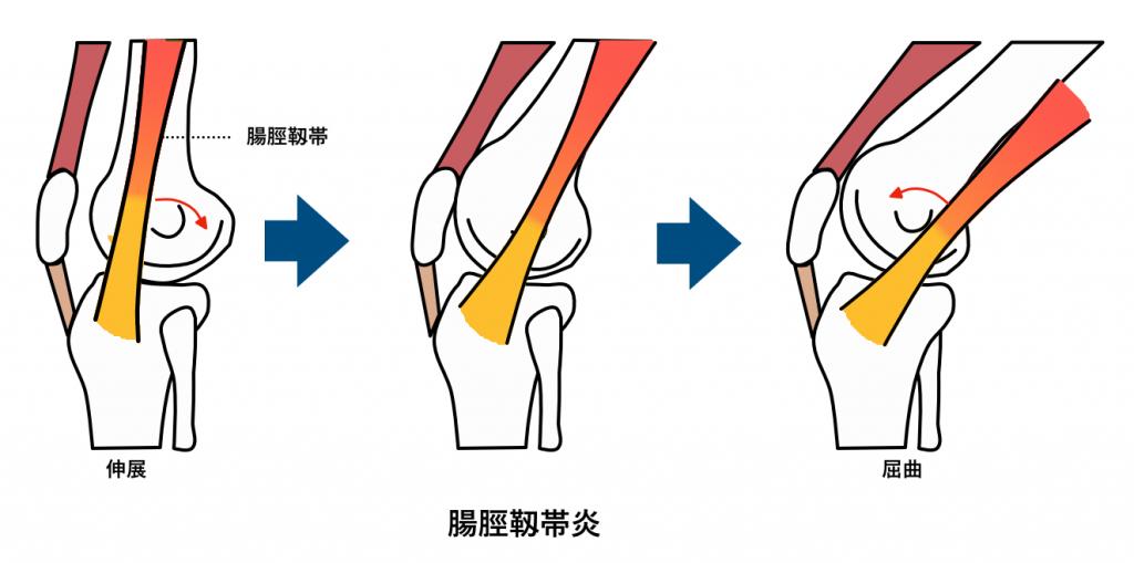 腸脛靱帯炎 スポーツ中の痛み
