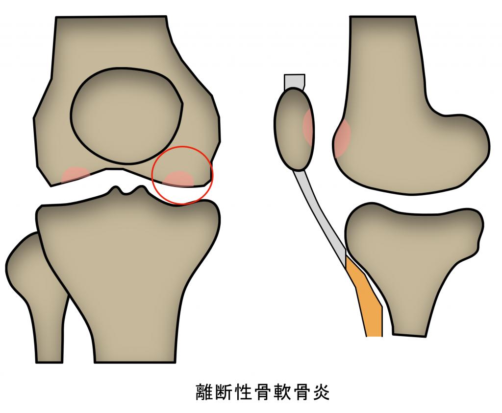 離断性骨軟骨炎 スポーツ中の痛み