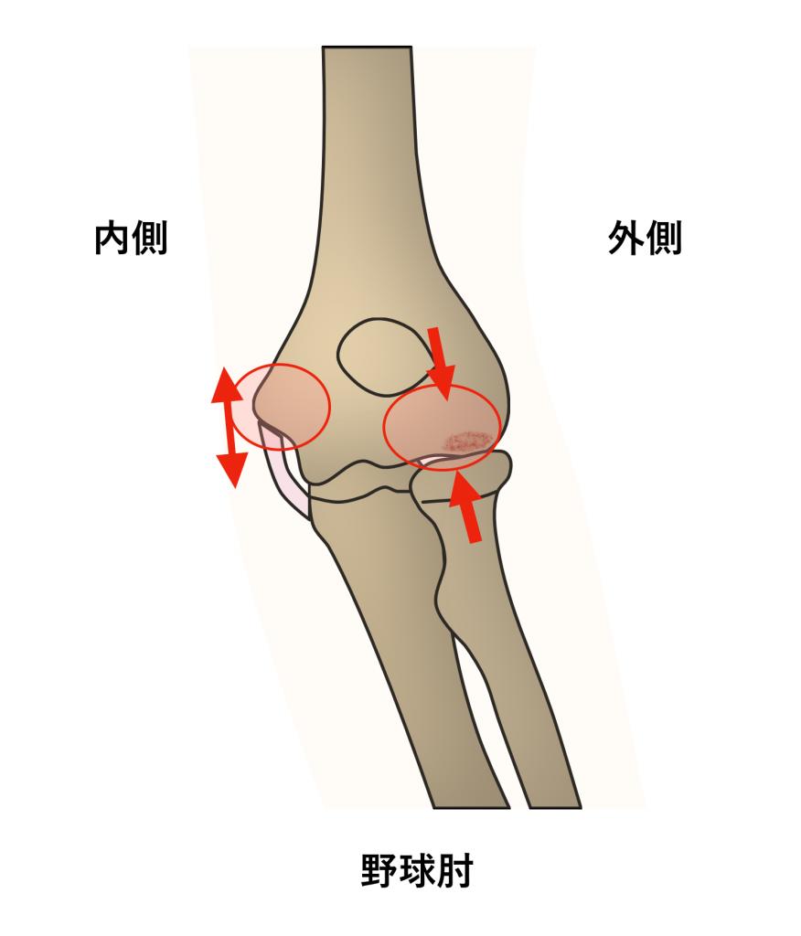 野球肘 スポーツ中の痛み