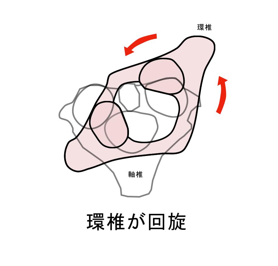 環軸椎回旋位固定