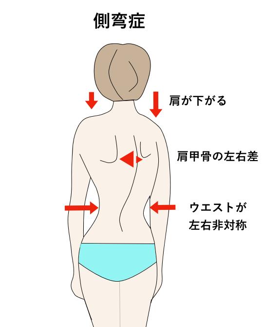 側弯症 小児整形外科