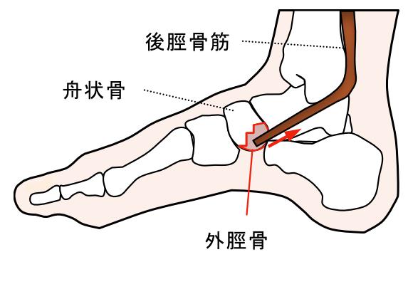 外脛骨 足の痛み