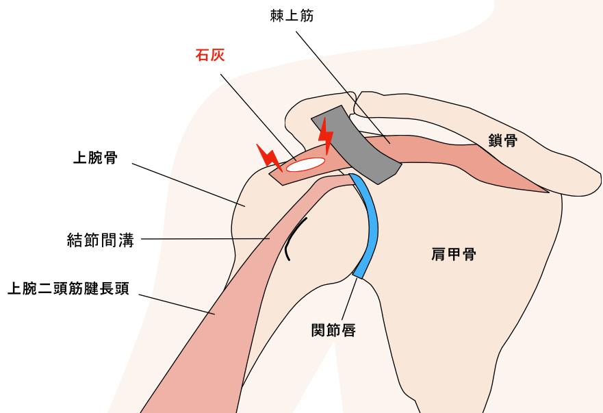 石灰沈着性腱板炎 肩の痛み
