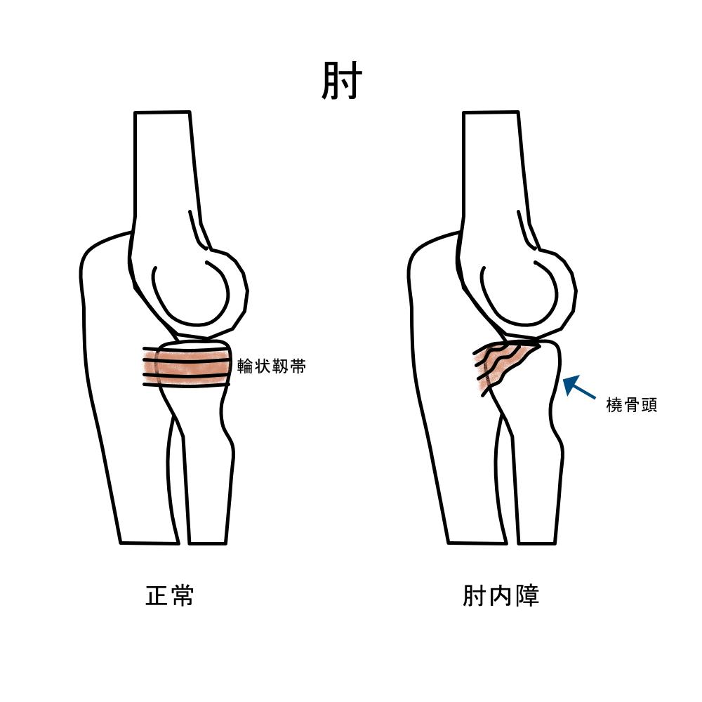 肘の痛み 肘内障
