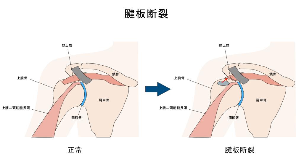 腱板断裂 肩の痛み