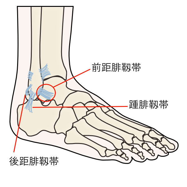 足関節捻挫 足首の痛み
