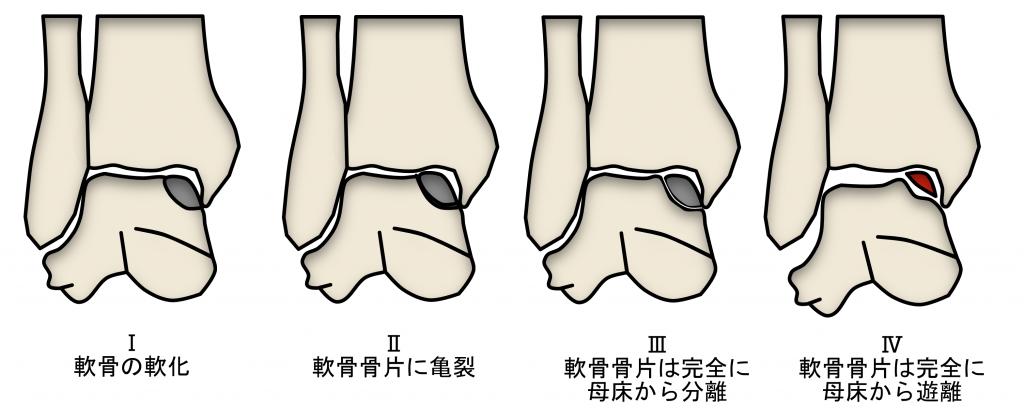 足関節距骨離断性骨軟骨炎