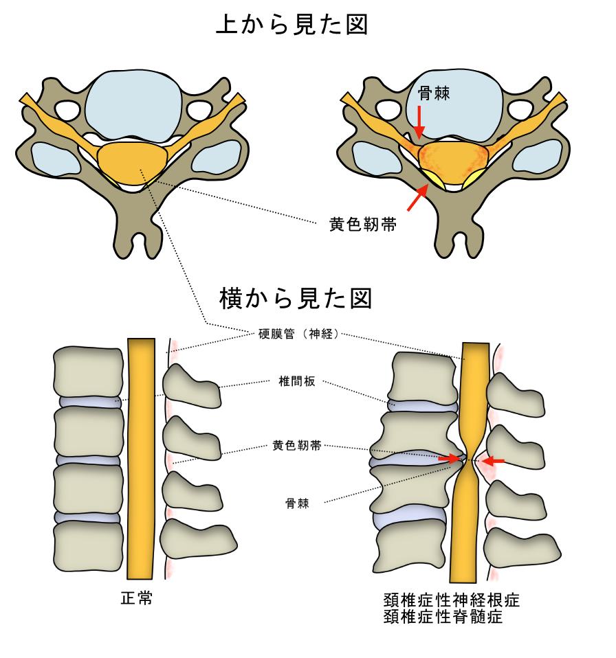 首の痛み 頚椎症性神経根症