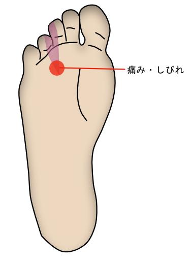 モートン病 足の痛み