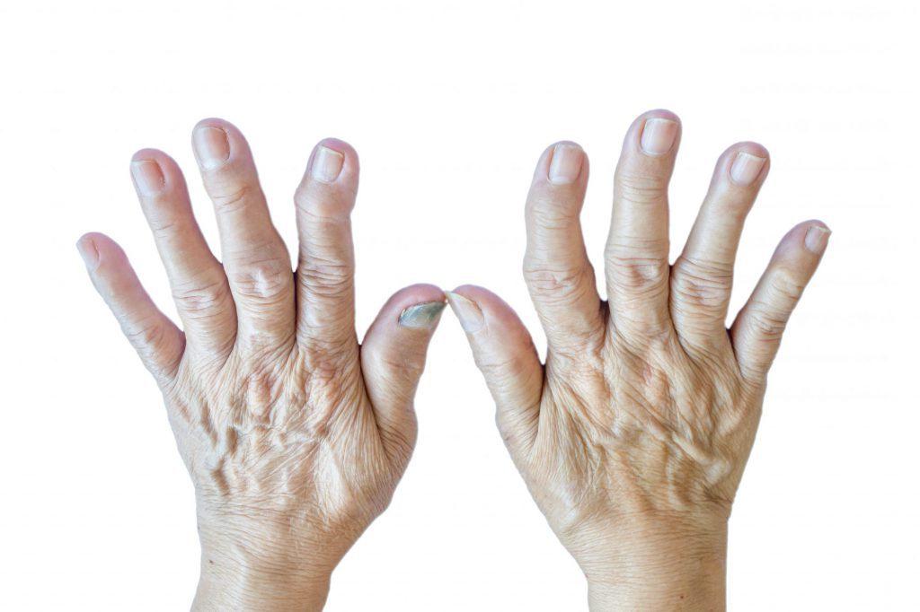 手の痛み リウマチ