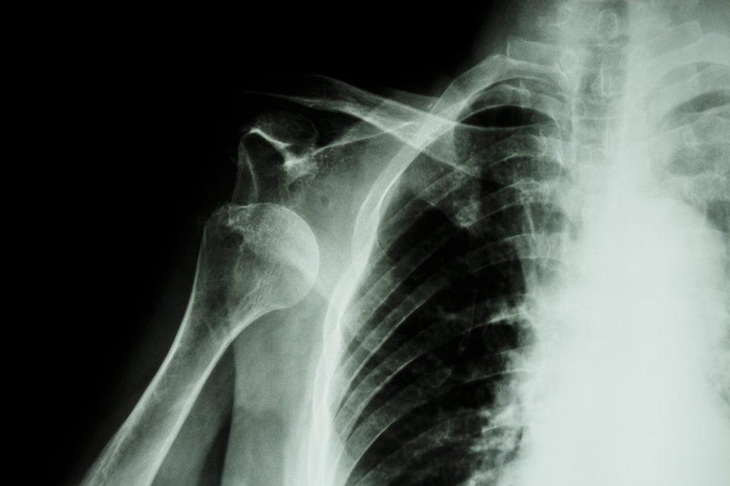 肩関節脱臼 スポーツ外傷