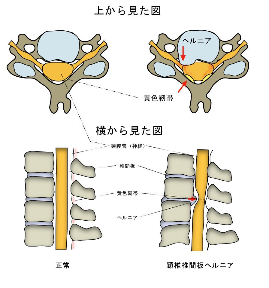 首の痛み 頚椎椎間板ヘルニア